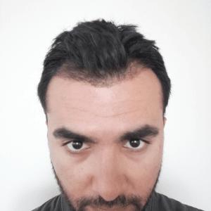 hairavrasya-hair-regrowth