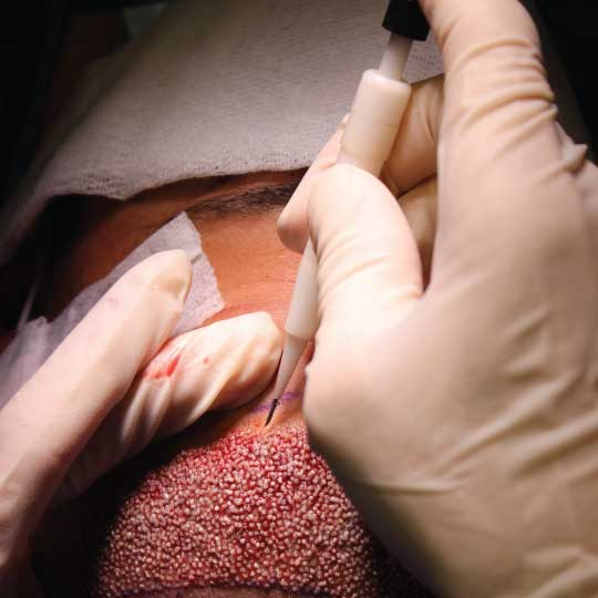 direct hair implantation for men