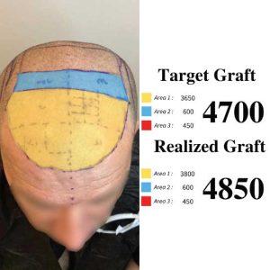 Hair transplant hairline