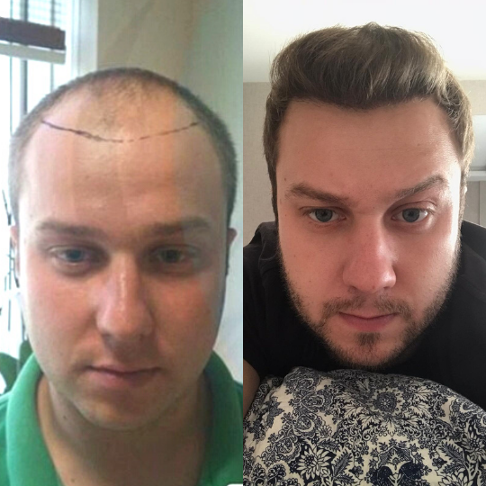 Hair Transplant Before After 4