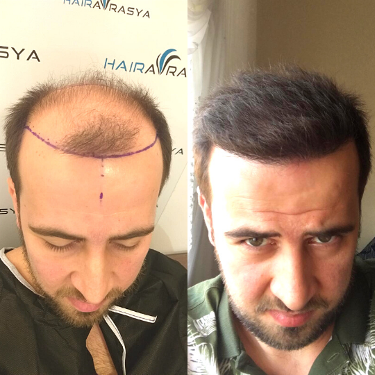 Hair Transplant Before After 1