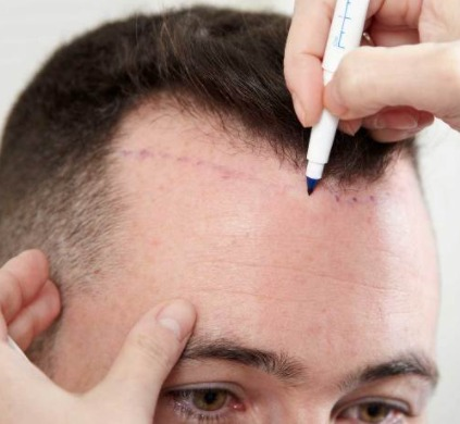 The Things People Wonder About Hair Transplantation